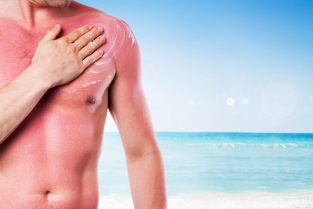 TOP 5 – Cairns Skin Cancer Myths