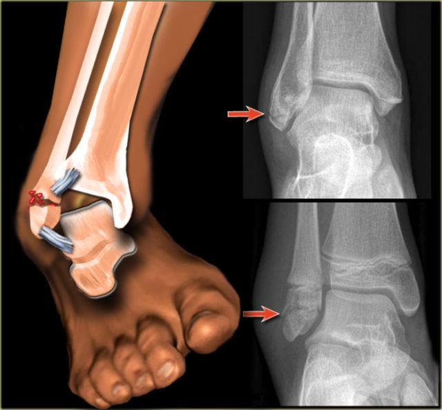 clifton-beach-medical-sports-doctor-ankle-sprain-insight-4